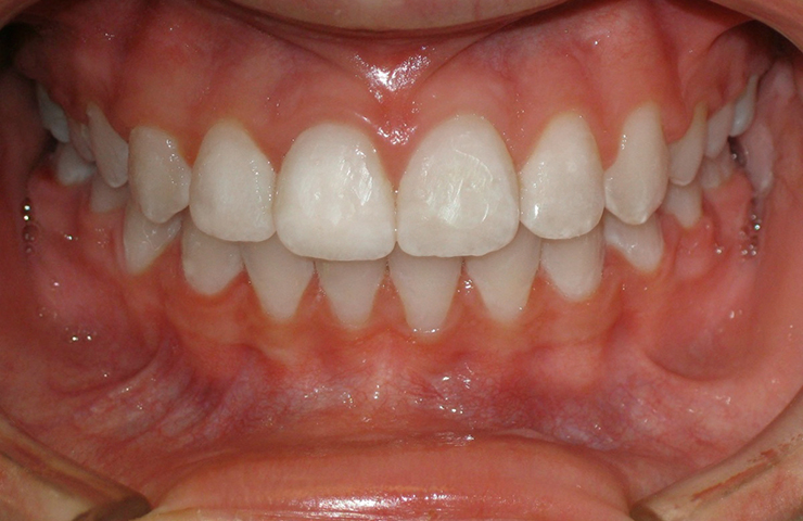 Spacing Before and After Orthodontic Treatment Pictures