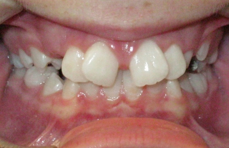 Spacing Before and After Orthodontic Treatment