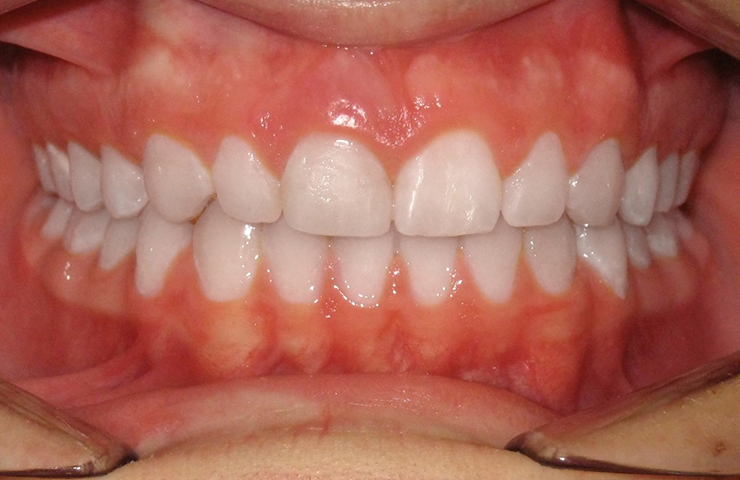Spaces Between Teeth Before and After Braces