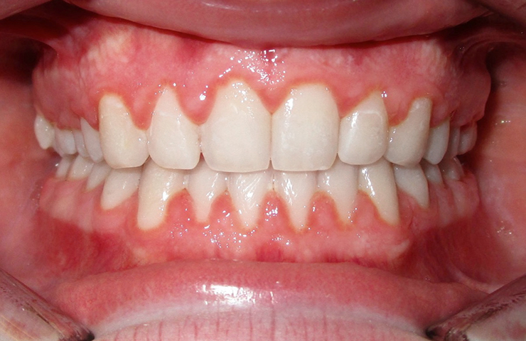 Spacing Before and After Invisalign Photos