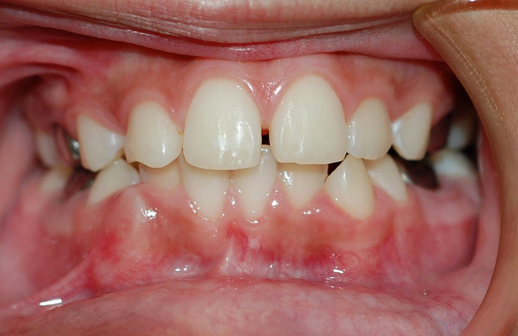 Spaces Between Teeth Before and After Braces Photos